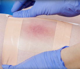 Waterproofing Your Wound Dressing for Swimming