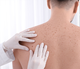 Cutaneous Lymphoma Lesions Skin Cancer Wound Care