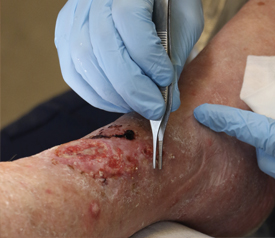 Lower Extremities Wound