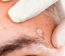 Skin Cancer Scar Prevention